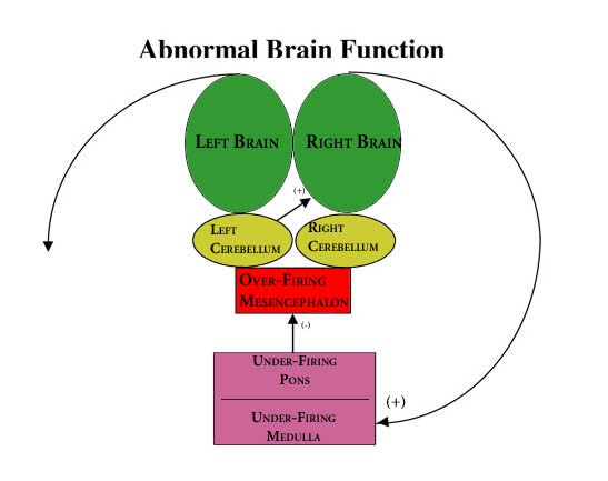 BBT Abnormal Brain