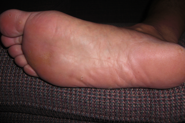 The Almost Wart-Free Foot