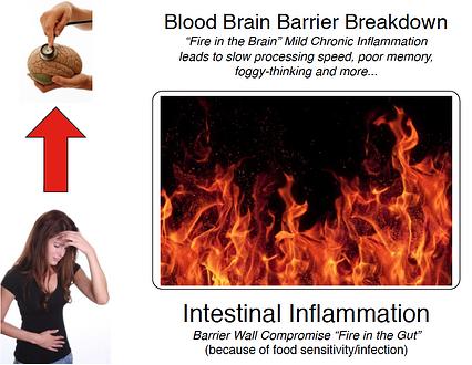 Fire in Gut-Fire in Brain