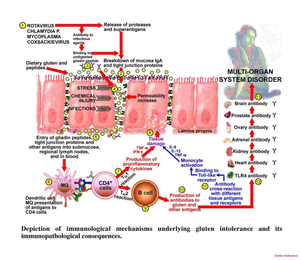 Leaky Gut and Autoimmune Disorders
