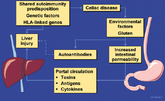 Proposed Mechanism of Liver Injury With CD resized 600