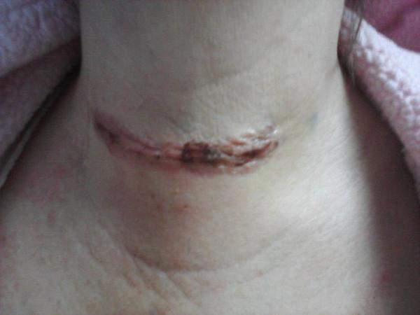 Thyroid Surgery