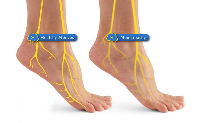 diabetic_neuropathy_feet