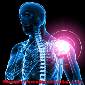 Brain-Body Miscommunication and The Frozen Shoulder Connection
