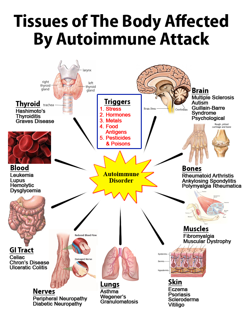 Tissues Affected By Autoimmune Attack