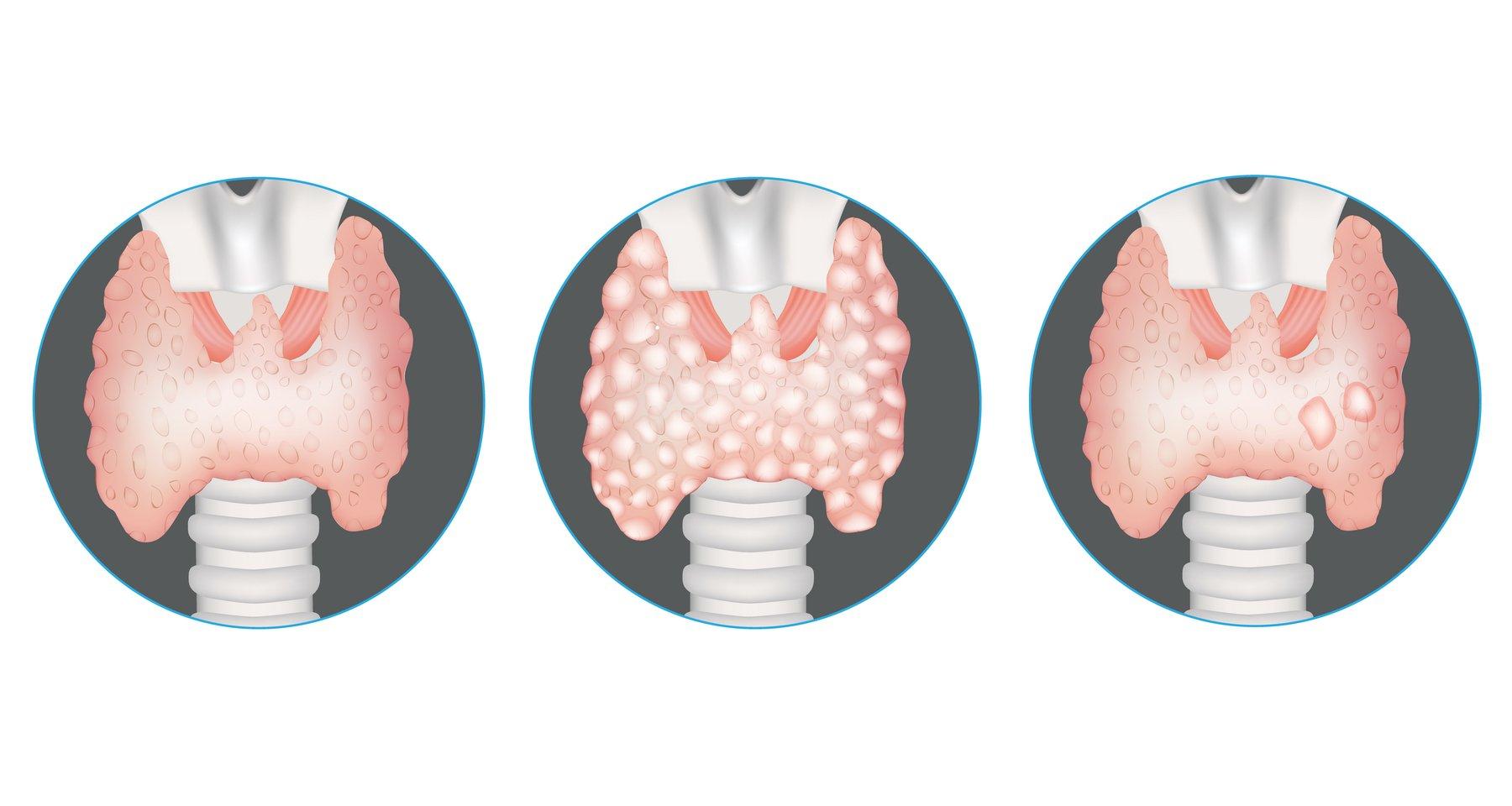 AdobeStock_Thyroid Nodules-1800