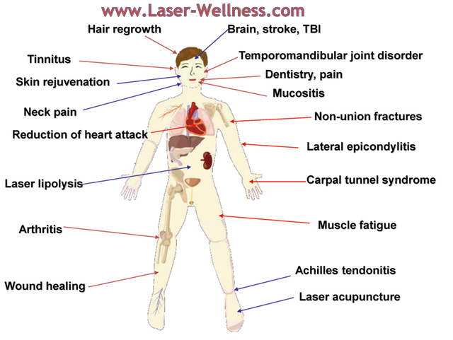 Researched_Effects_of_LASER-PhotoBioModulation-640.png